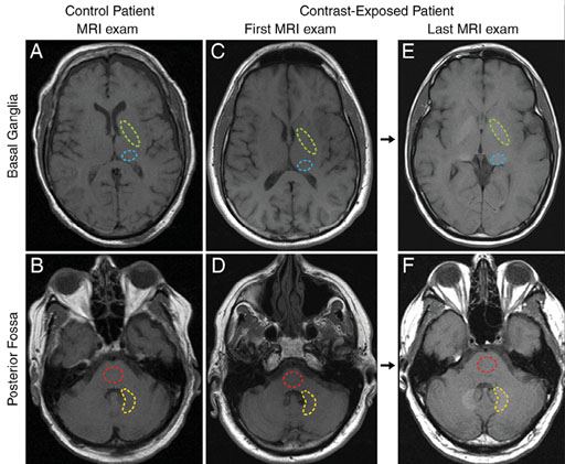 Image: A comparison of MRI exams carried out with and without gadolinium-based contrast agents (Photo courtesy of Radiology Journal).