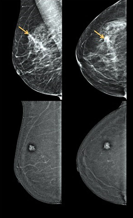 Image: Digital mammograms (top) compared with Contrast-Enhanced Digital Mammography (CEDM) images (bottom) for breast cancer screening (Photo courtesy of Dr. John Lewin).