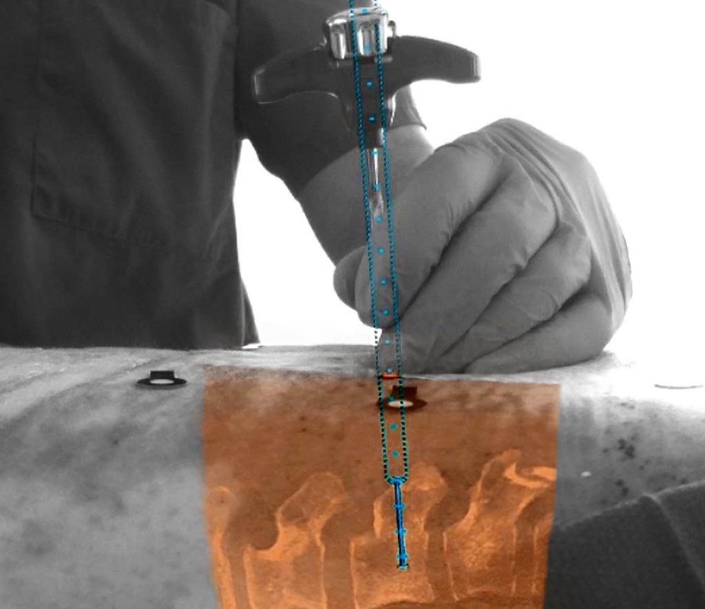 Image: The new augmented-reality surgical navigation technology for spinal surgery (Photo courtesy of Royal Philips).
