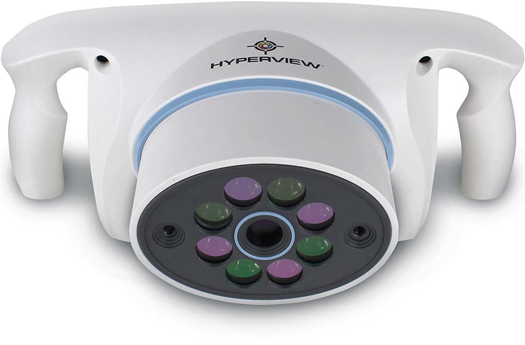Image: The Hyperview hyperspectral tissue oxygenation device (Photo courtesy of HyperMed Imaging).