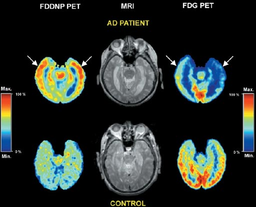 Image: An example of an FDG-PET imaging scan of the human brain (Photo courtesy of PubMed).