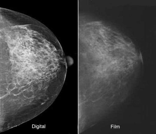 Image: Research shows digital mammography has improved cancer detection rates by nearly 10 percent over traditional film mammography (Photo courtesy of Shutterstock).