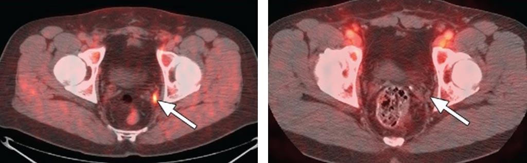cáncer de próstata flucicloviner