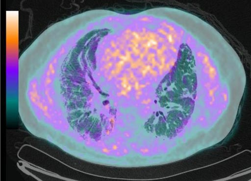 Image: A PET/CT image showing the lungs of a patient with idiopathic pulmonary fibrosis (Photo courtesy of iStock).