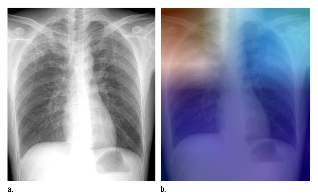 Image: A chest X-Ray of a patient with active TB, and an X-Ray with a heat map overlay showing some of the results of the AI analysis (Photo courtesy of RSNA).