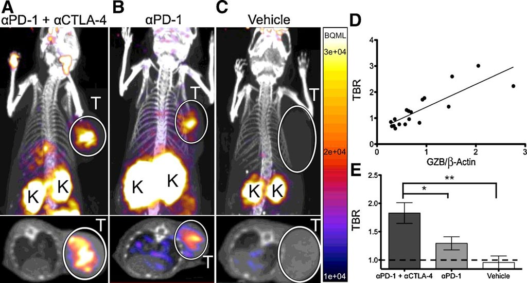 Image: A new non-invasive PET imaging technique can help clinicians predict immunotherapy response earlier (Photo courtesy of AACR Journals).