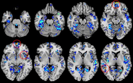 Image: Functional Magnetic Resonance Imaging (fMRI) brain scans intended to identify biomarkers for autism (Photo courtesy of SpectrumNews).
