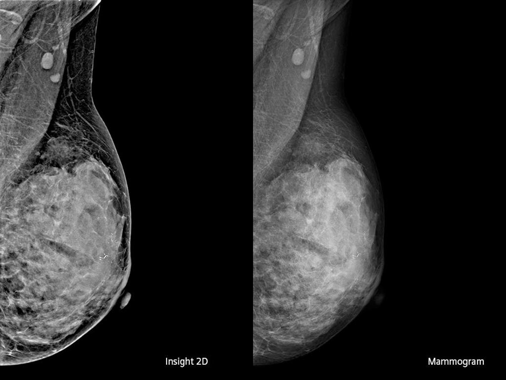 Image: An Insight 2D image generated from DBT compared to standard mammogram (Photo courtesy of Siemens Healthineers).