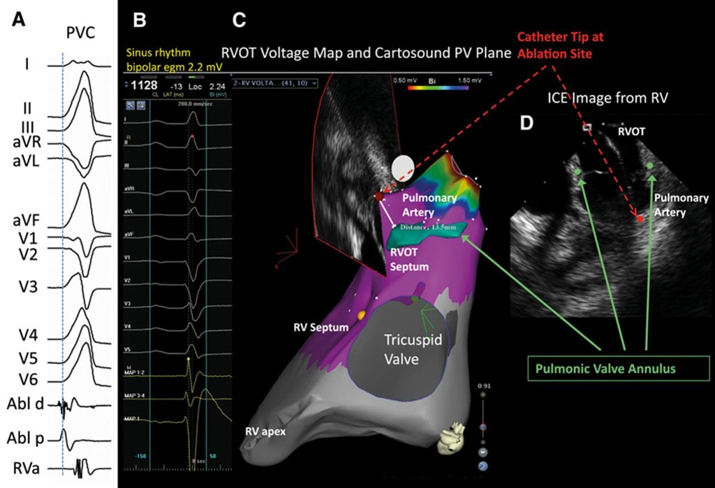 Image: An example of the use of Intracardiac EchoCardiography (ICE) to investigate atrial fibrillation (Photo courtesy of the AHA Journals).