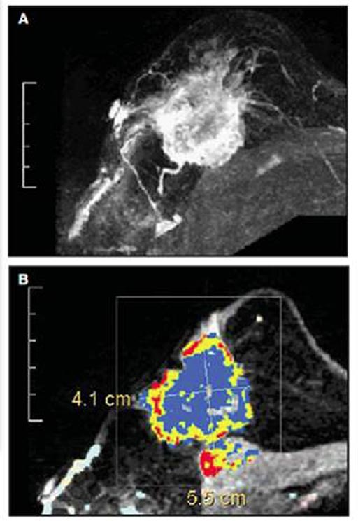 Mri Finds Breast Cancer Following Conservation Surgery Mri