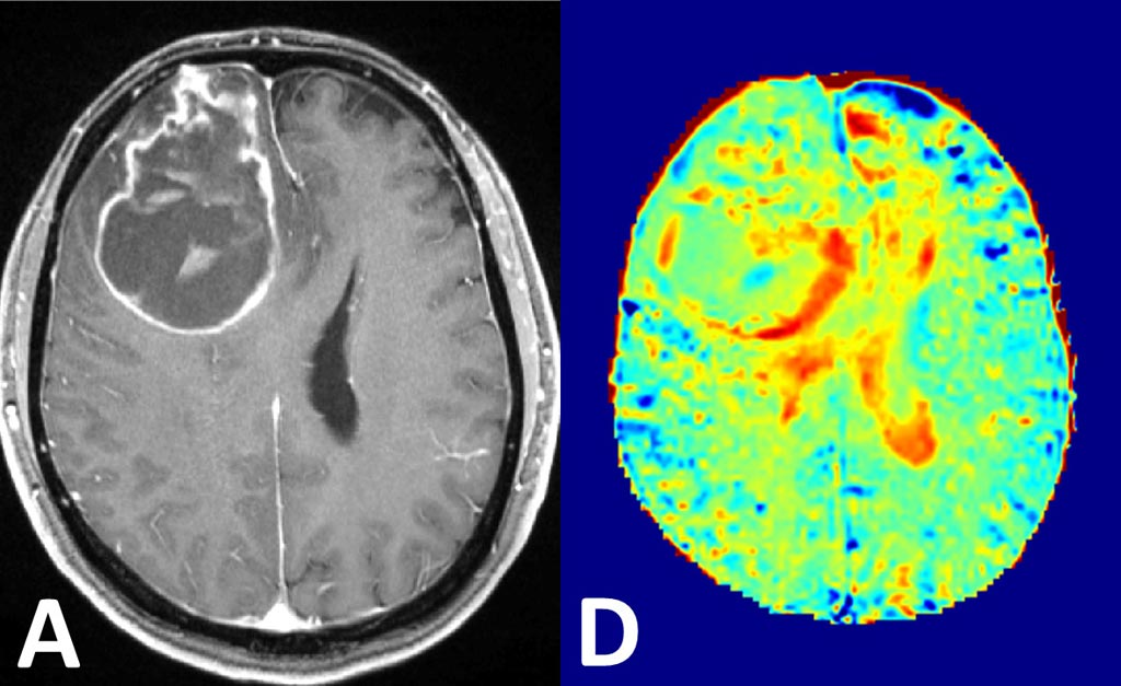 Image: Visualization of brain cancer by conventional contrast agents (L) and using glucose MRI method (R) (Photo courtesy of DKFZ).