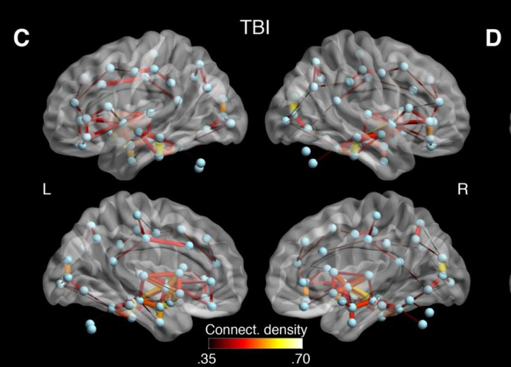Image: Researchers found that white matter connections between several brain regions of concussed individuals showed abnormal connectivity that might reflect both degeneration and the brain\'s method of compensating for damage (Photo courtesy of Dr. Sebastien Tremblay).