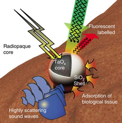 Image: An illustration of a multifunctional Tantalum oxide/silica core/shell nanoparticles (TSNs) with a radiopaque core for X-ray imaging, conjugated fluorescent dye for fluorescent imaging, a dense core material with a high sound-scattering effect for ultrasound imaging, and a silica surface for adhesive property (Photo courtesy of Nature Communications).