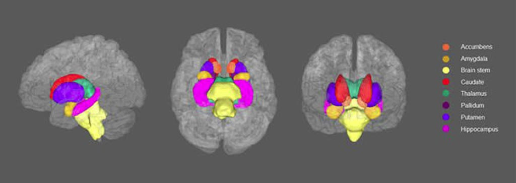 Image: Subcortical structures of interest in left, inferior and anterior view (Photo courtesy of Whalley et al./Scientific Reports).