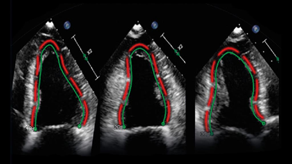 Image: Two sample images processed by the TOMTEC ultrasound image analysis software (Photo courtesy of Philips Healthcare).