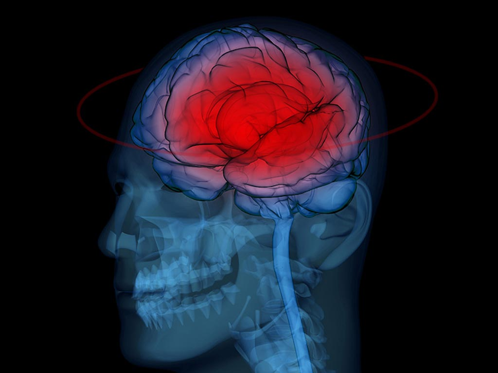 Image: The results of a new study show that MRI-DTI can help clinicians predict cognitive impairment and Mild Traumatic Brain Injuries (mTBI) in professional fighters (Photo courtesy of iStock).