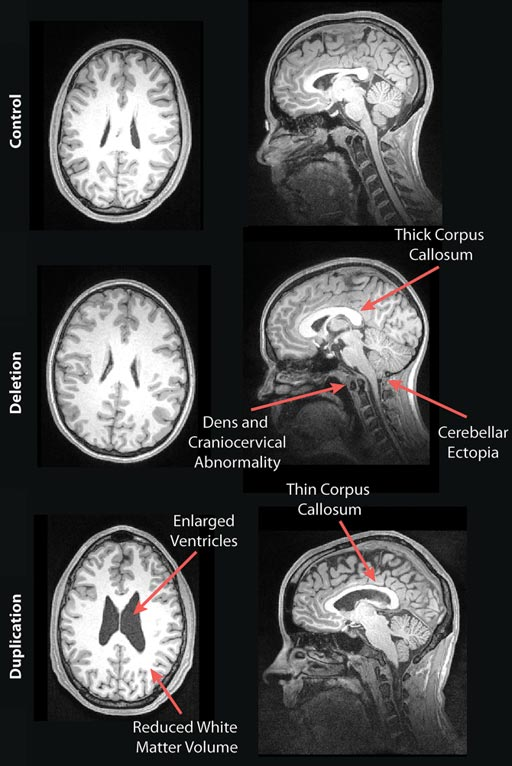 Image: The MRI images show examples of the brains of a deletion carrier, a duplication carrier, and a control participant in the study (Photo courtesy of RSNA).