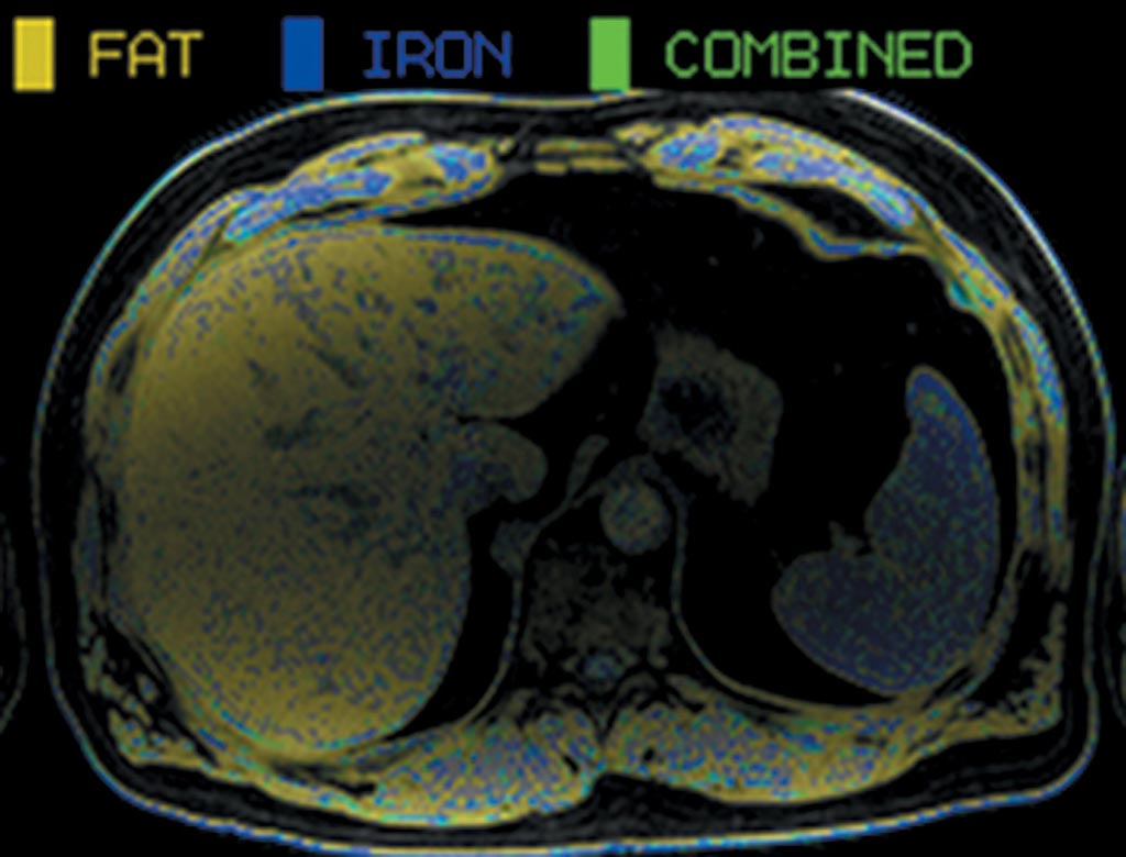 Image: An example of an MRI in a potential living liver donor demonstrating hepatic steatosis (yellow) of the whole liver (Photo courtesy of the University of Toronto).