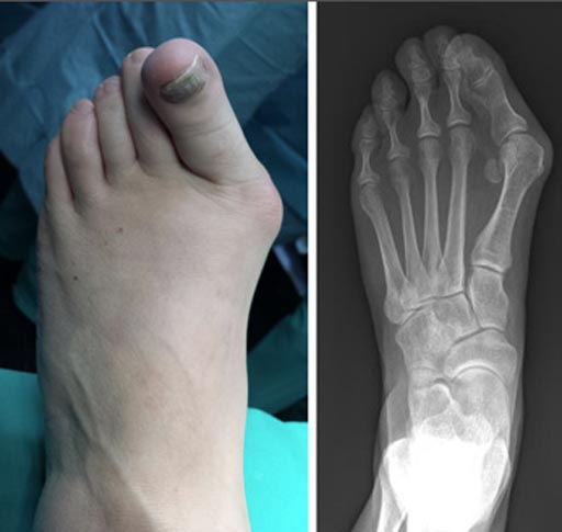 Image: The clinical and radiographic appearance of a bunion (Photo courtesy of AAOS).