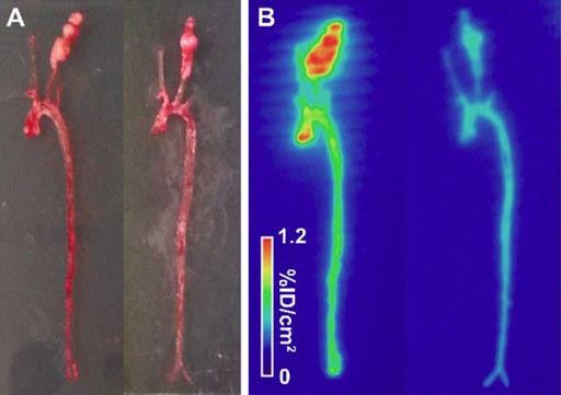 Image: A novel imaging tracer can help detect risk of abdominal aortic aneurysm (Photo courtesy of Yale University).