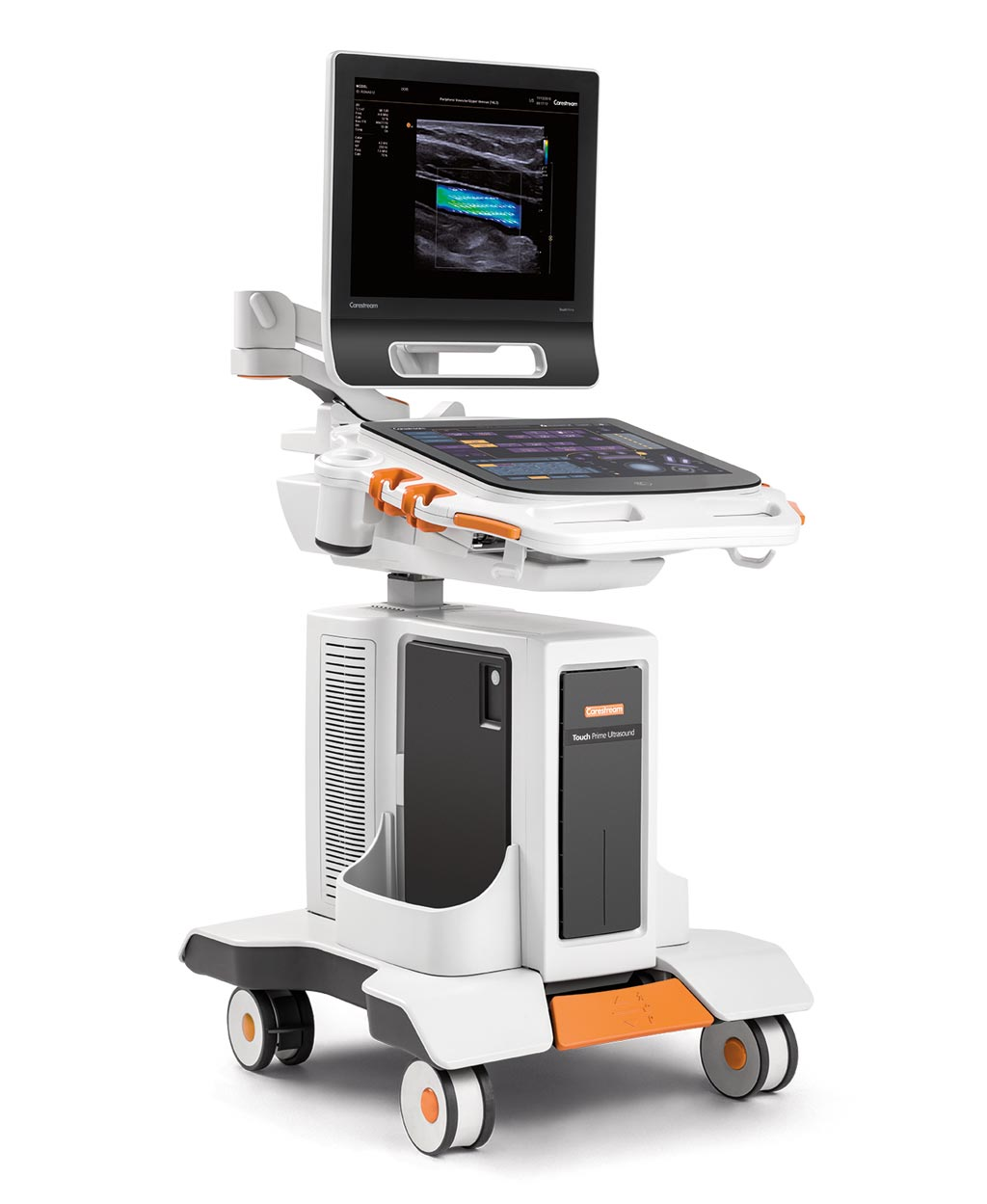 Image: The Touch Prime XE ultrasound system (Photo courtesy of Carestream Health).
