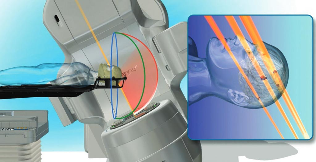 Image: The HyperArc radiotherapy system (Photo courtesy of Varian Medical Systems).
