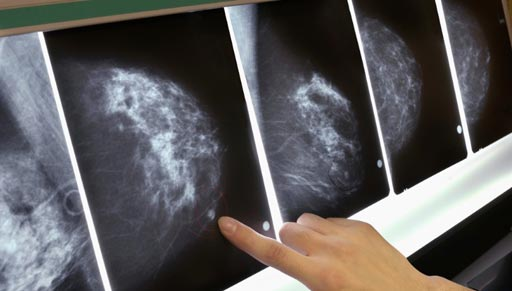 Image: Clinicians reviewing breast cancer screening results (Photo courtesy of Getty Images).