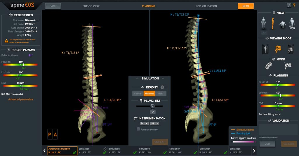 Image: The image shows the new spineEOS spine surgery planning and simulation software that includes personalized biomechanical simulation (Photo courtesy of EOS Imaging).
