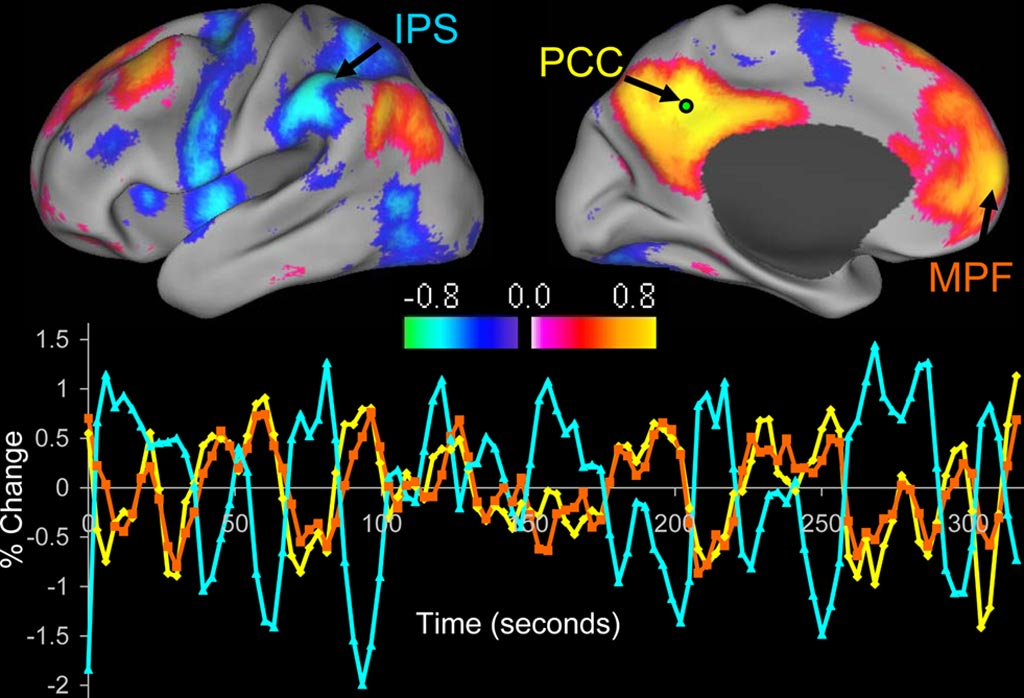 Image: The image shows an example of resting-state functional connectivity Magnetic Resonance Imaging (rsfcMRI) (Photo courtesy of Washington University).