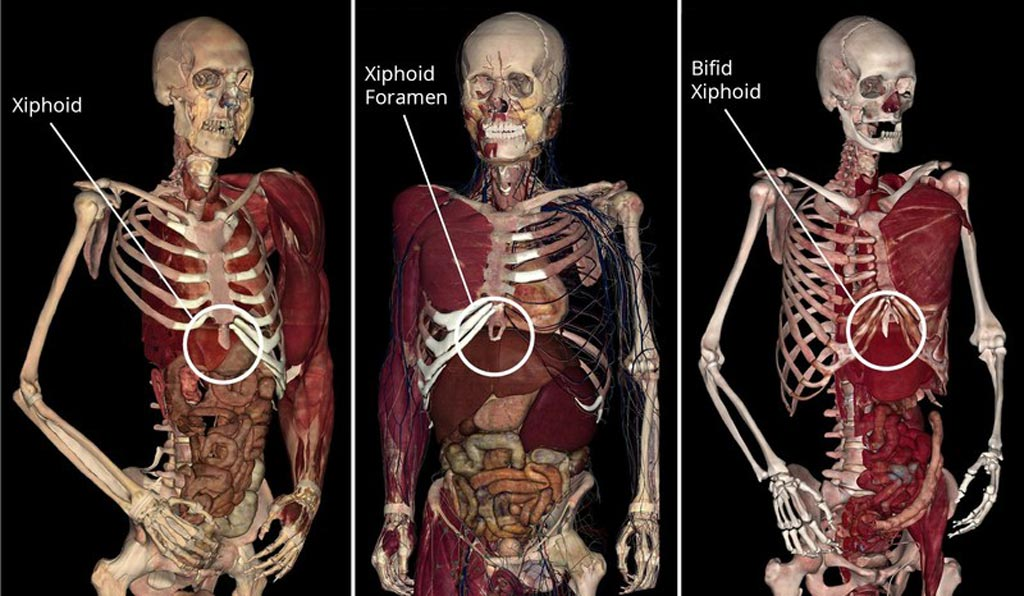 Image: Three-dimensional images from the high-tech anatomy visualization software (Photo courtesy of Anatomage).