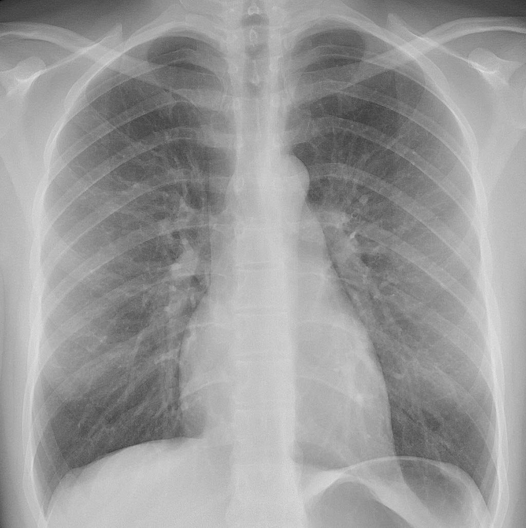 Image: A normal chest x-ray (Photo courtesy of Wikipedia).