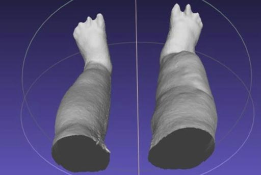 Image: A portable scanning device produces a 3-D reconstruction of swollen legs caused by lymphatic filariasis (Photo courtesy of Michael J. Weiler / LymphaTech).