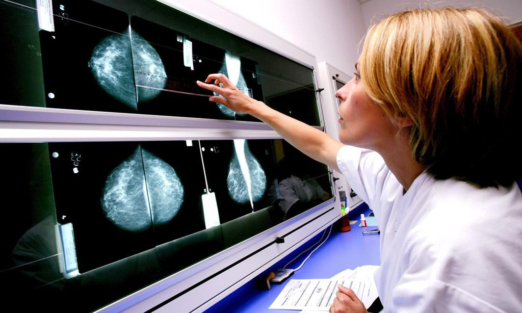 Image: New research asserts computer-aided detection of breast cancer is still being overused (Photo courtesy of Alamy).