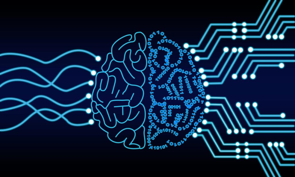 Image: An AI company has created a neural network that can detect brain hemorrhages from computed tomography (CT) scans (Photo courtesy of Shutterstock).