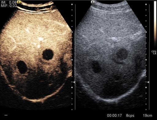 Image: A new study suggests contrast enhance ultrasound (L) provides good diagnostic aid (Photo courtesy of radiopaedia.org).