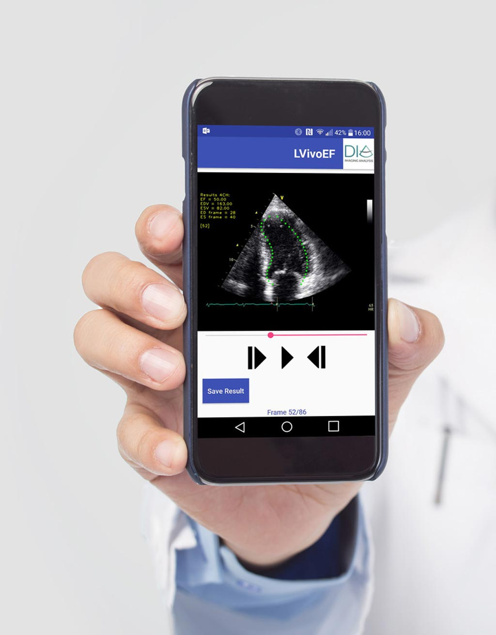 Image: Automated tools for ultrasound analysis on mobile devices (Photo courtesy of DiA).