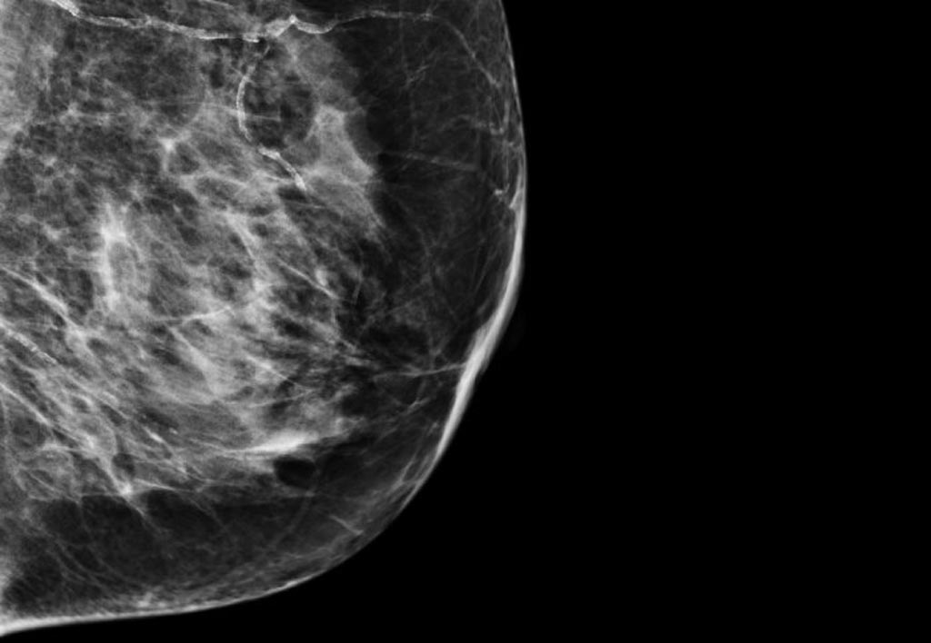 Image: A new research collaboration aims to improve breast cancer diagnosis using AI (Photo courtesy of Imperial College London).
