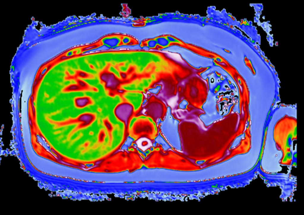 Image: A LiverMultiScan image of a post-bariatric liver (Photo courtesy of Perspectum Diagnostics).