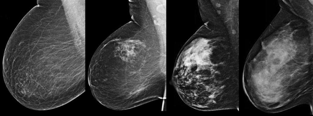 Image: Researchers have developed a new deep learning-based algorithm for breast density segmentation and estimation (Photo courtesy of iStock).