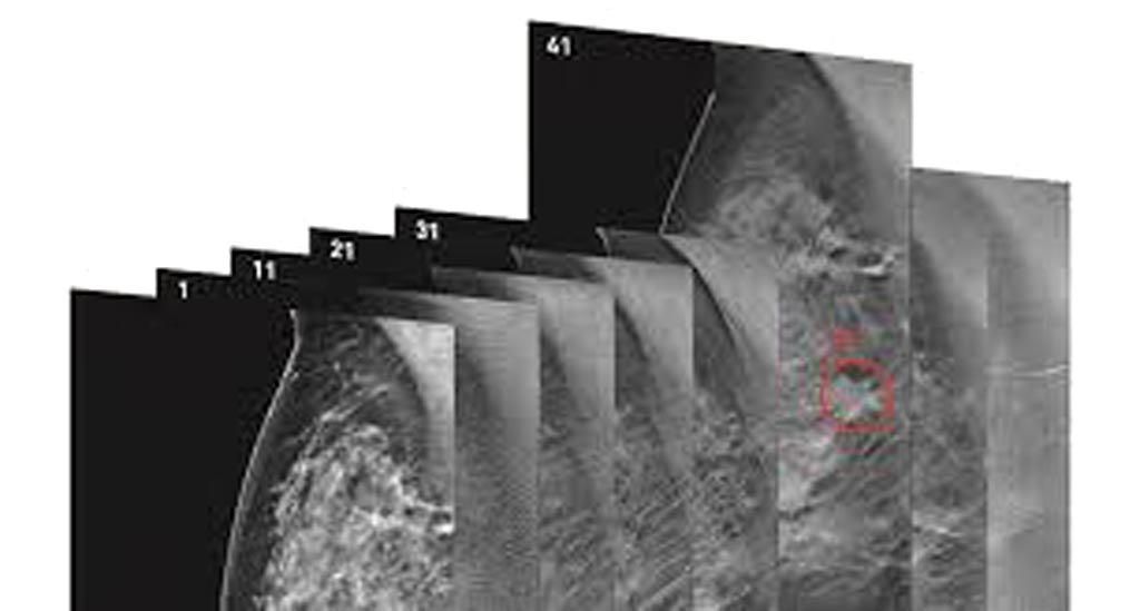 Image: The software engine named Transpara DBT is intended to assist radiologists in reading digital breast tomosynthesis and mammography exams (Photo courtesy of ScreenPoint Medical).