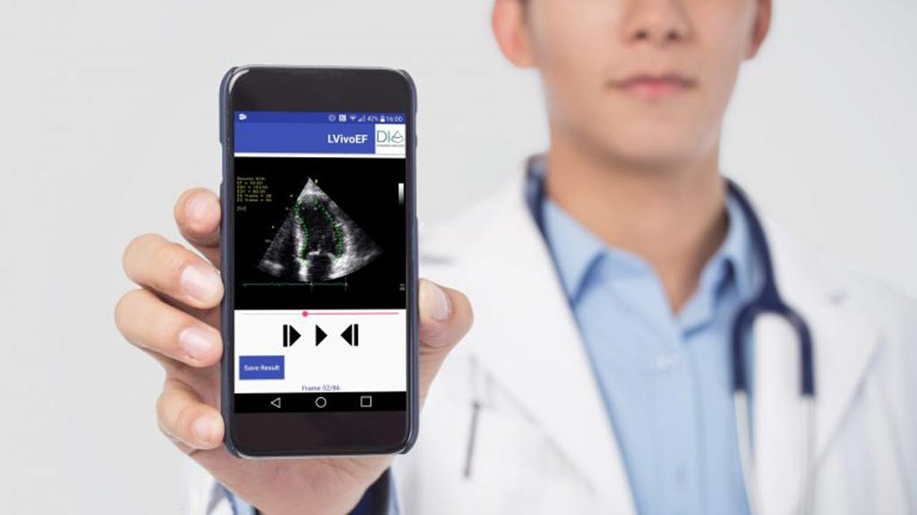 Image: Ultrasound imaging analysis is accessible anytime via Google Cloud (Photo courtesy of DiA).