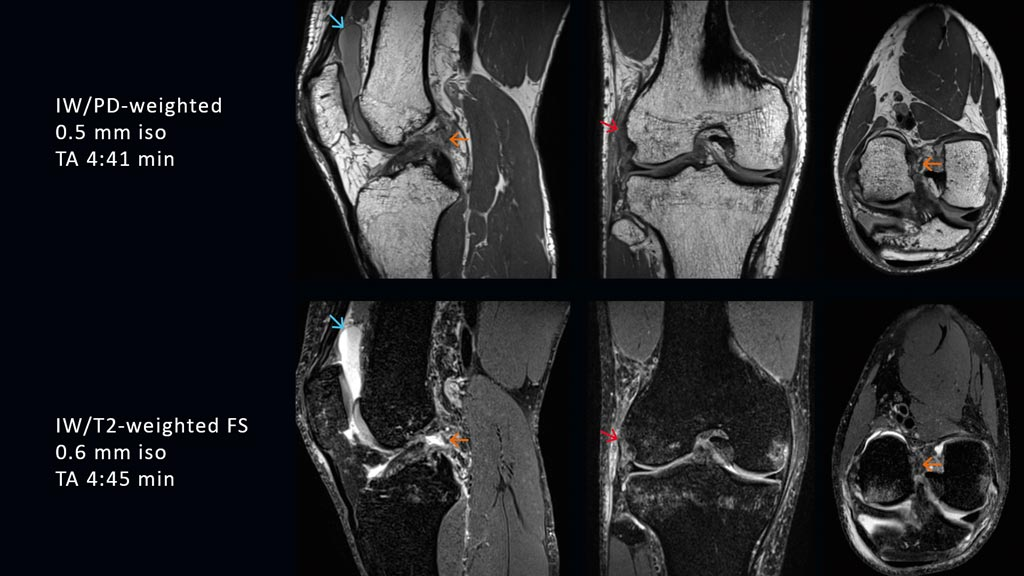 Image: High-resolution 3D isotropic images using the GOKnee3D app (Photo courtesy of Siemens Healthineers).