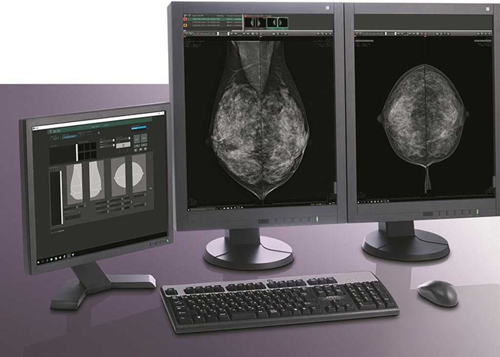 Image: The Aspire Bellus II smart mammography workstation (Photo courtesy of Fujifilm).