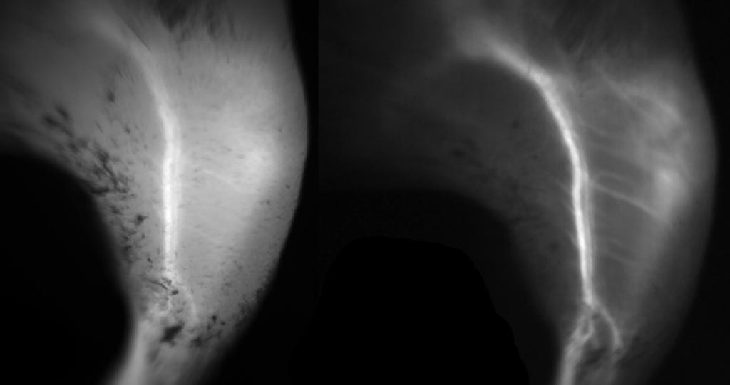 Image: Capillary imaging using NIR (L), as compared to SWIR (R), using ICG dye (Photo courtesy of MIT).