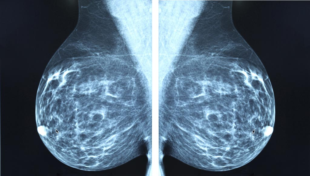 Image: The global breast imaging market is being driven by the increasing prevalence of breast cancer and diseases such as infections, lesions and fibrocysts (Photo courtesy of iStock).
