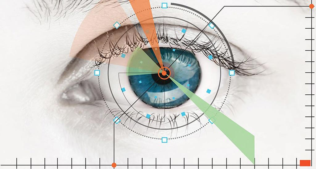 Image: The IDx-DR system is designed to analyze images of the eye taken with a retinal camera and detect diabetic retinopathy (Photo courtesy of IDx).