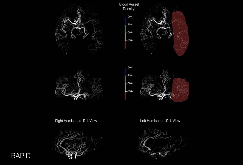Image: An advanced brain-imaging platform provides optimal CTA Image (Photo courtesy of iSchemaView).