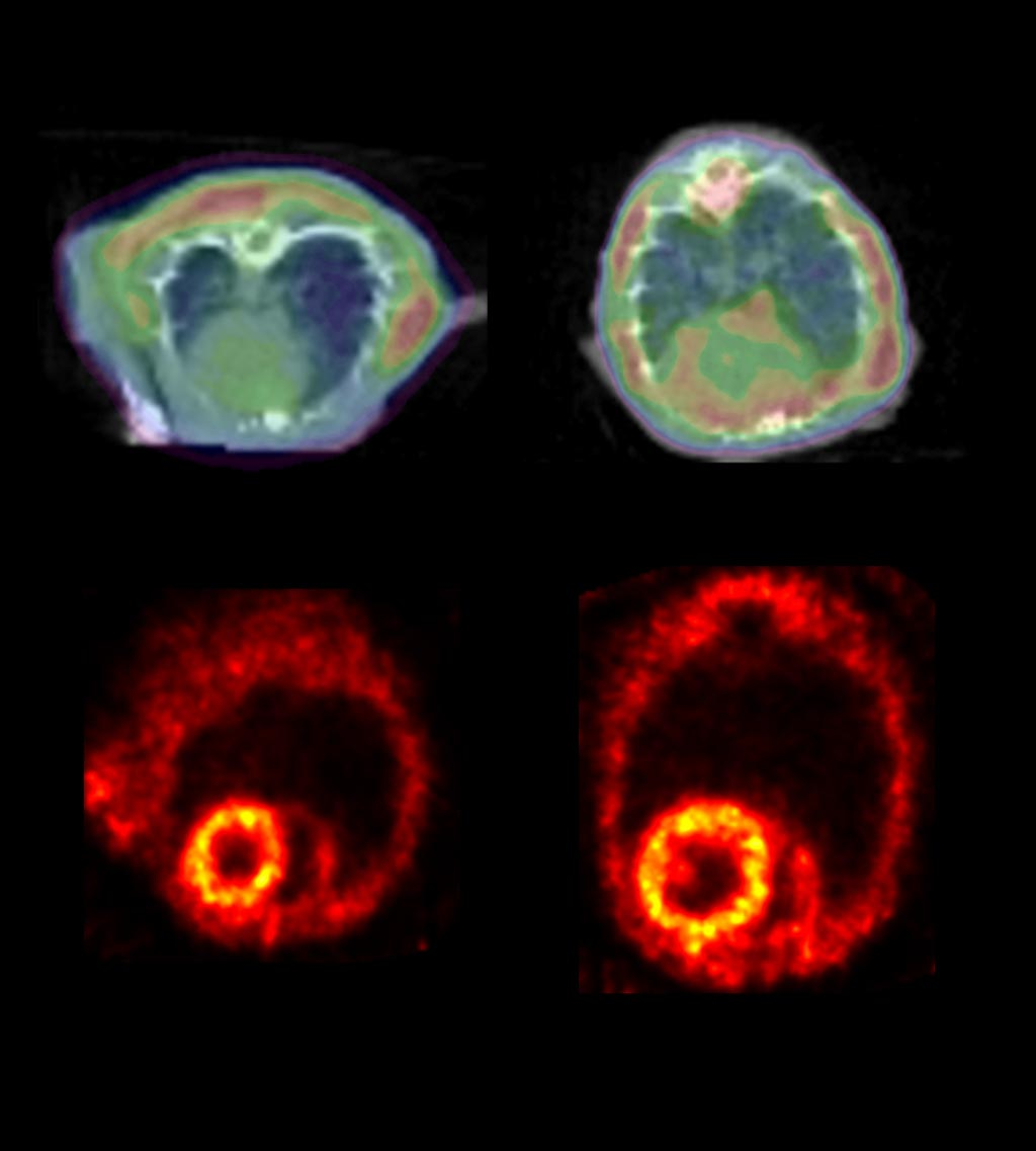 Image: A PET scan detects clumping proteins in HF (R) (Photo courtesy of Johns Hopkins University).