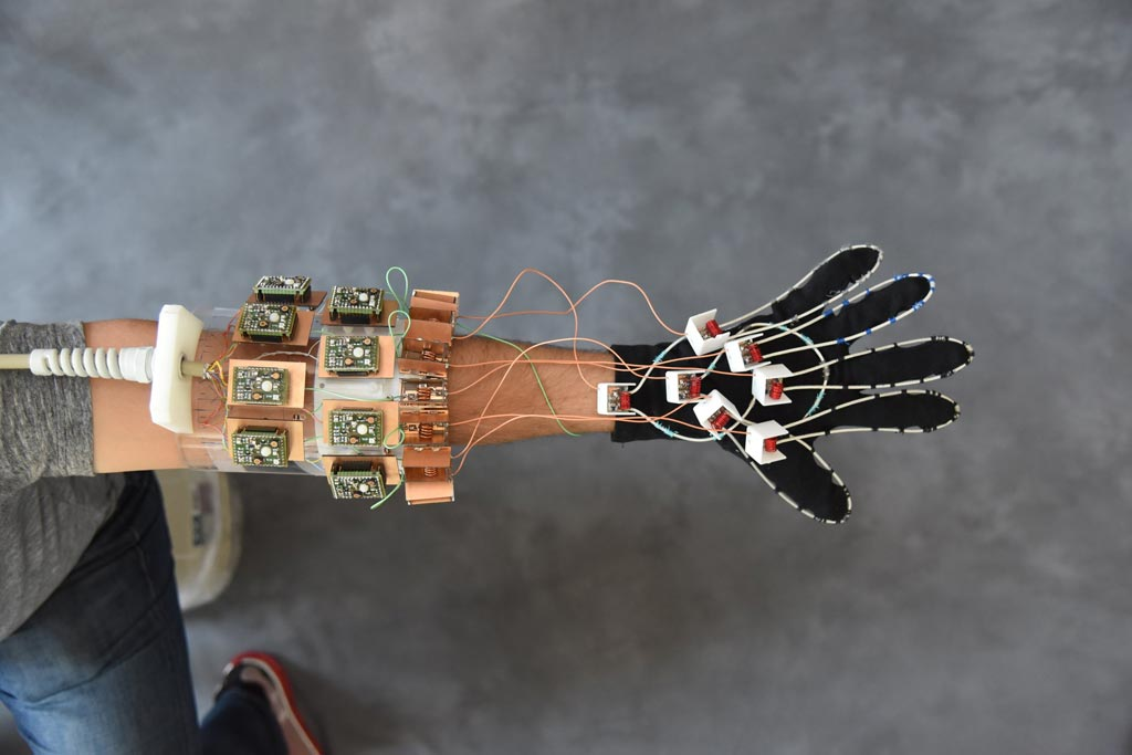 Image: The wearable MRI glove is designed to image moving joints and aid in diagnosing repetitive strain injuries (Photo courtesy of NYU Langone).