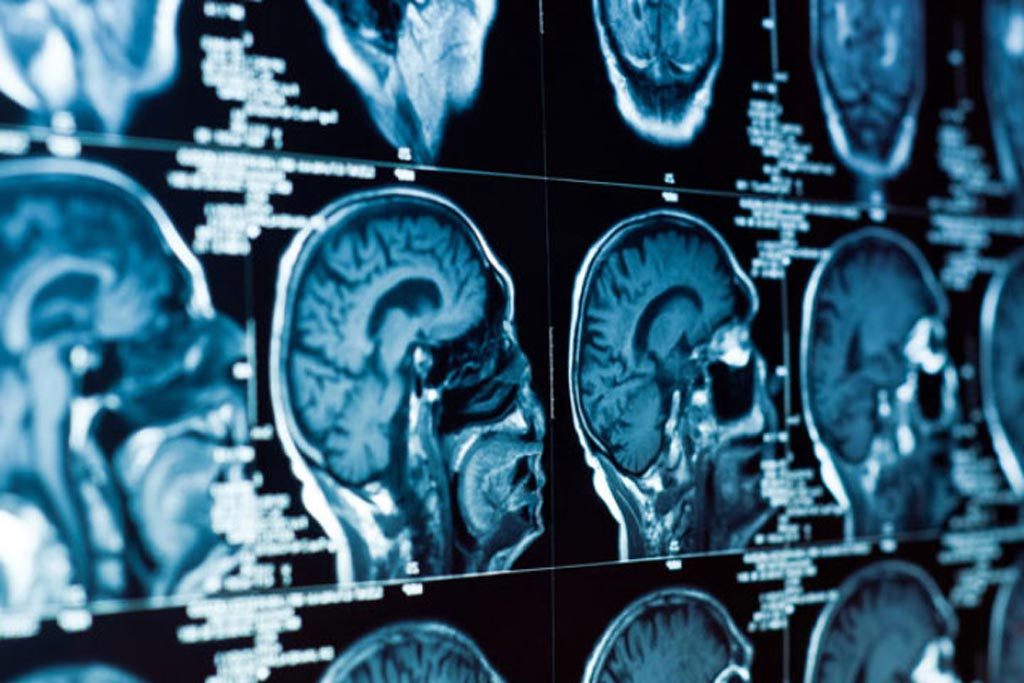 Image: A new software can identify and measure the severity of small vessel disease, which is among the most common factors responsible for stroke and dementia (Photo courtesy of Shutterstock).